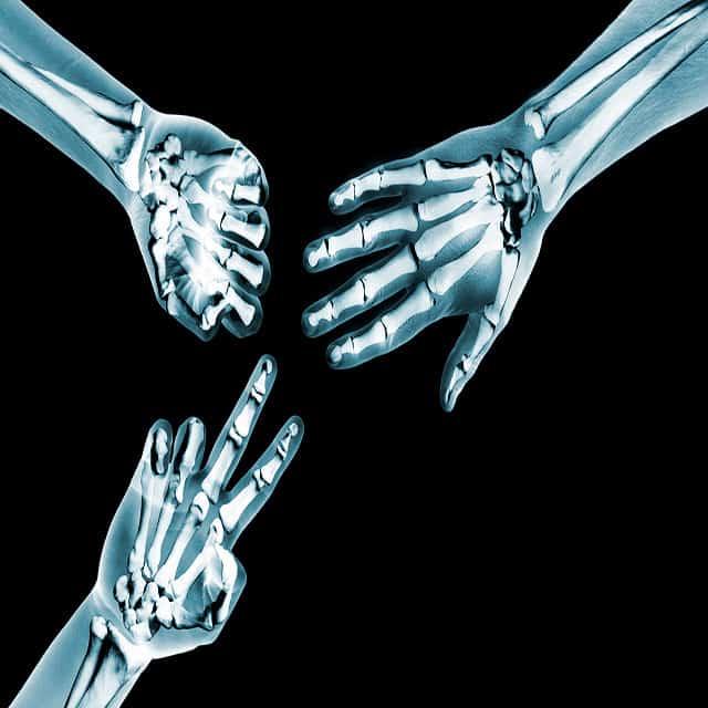 Hands pain