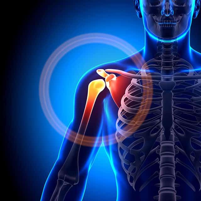 Shoulders Pain